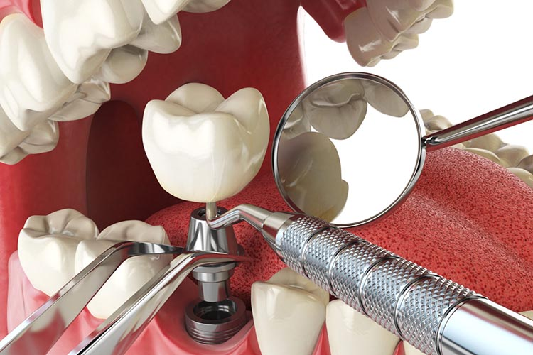 dental implants lekki lagos