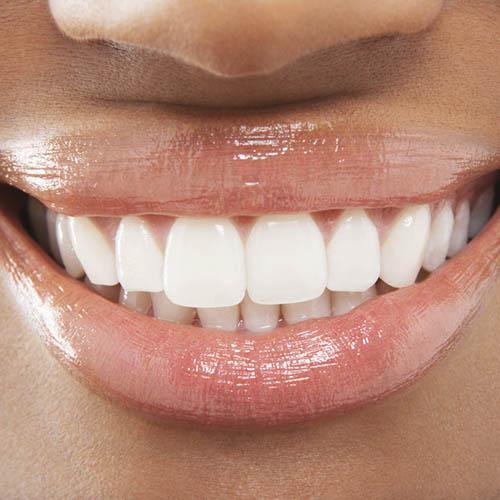 teeth whitening lekki lagos